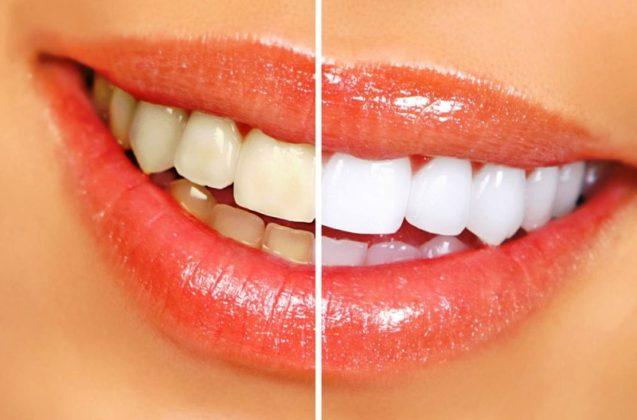 Борьба с желтыми пятнами на зубах