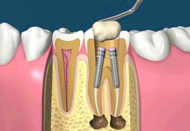 Развитие зубных имплантатов