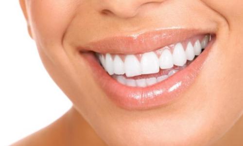 Красивые белые зубы — это реально!